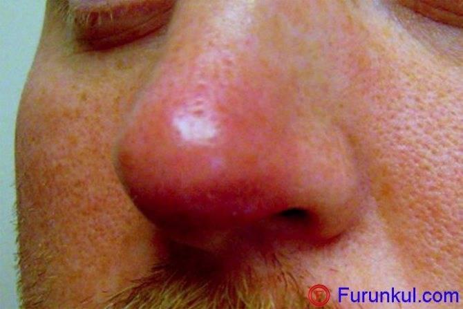 чирей в носу чем лечить