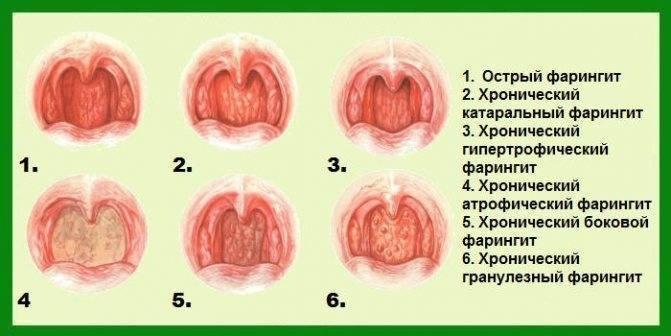 Мелкая прозрачная сыпь в горле