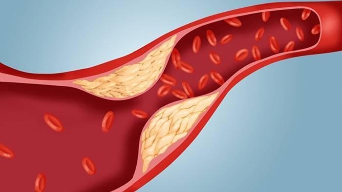 Пневмосклероз легких - что это такое?