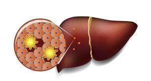 Поражения печени: причины, симптомы и лечение