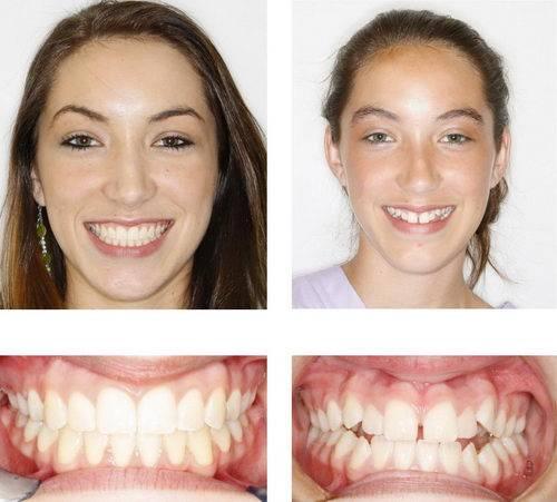 Последствия брекетов— изменение лица после зубных конструкций