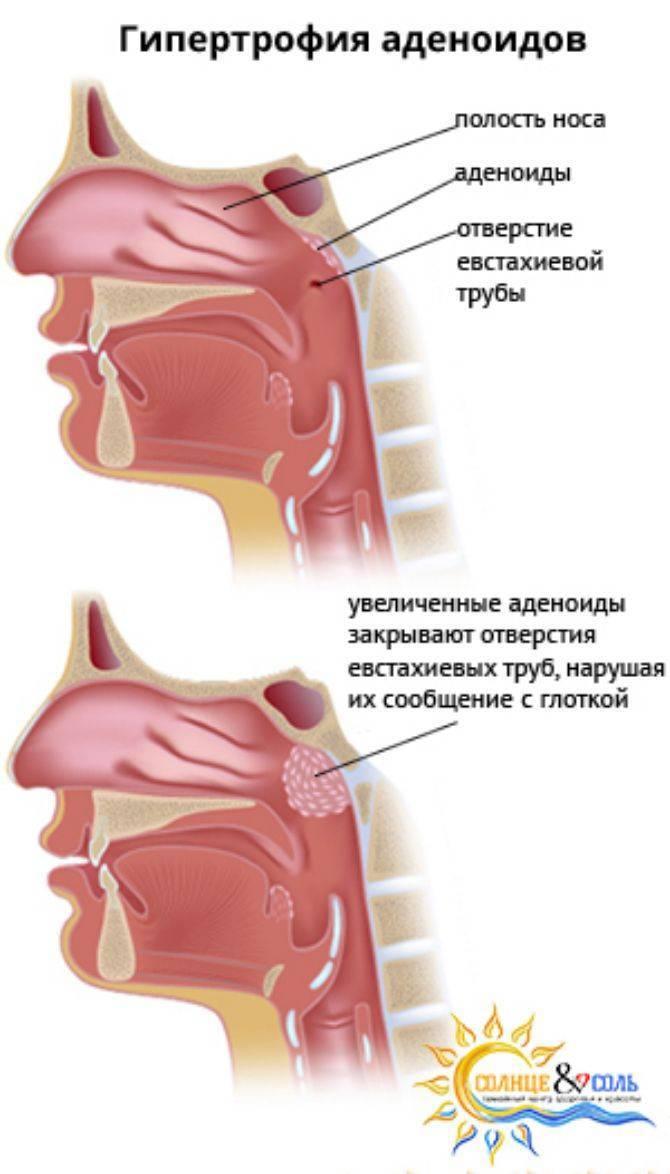 Гипертрофия слизистой гайморовой пазухи