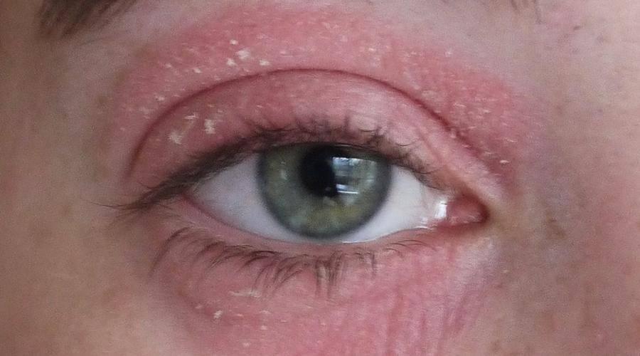 под глазами красные пятна шелушатся