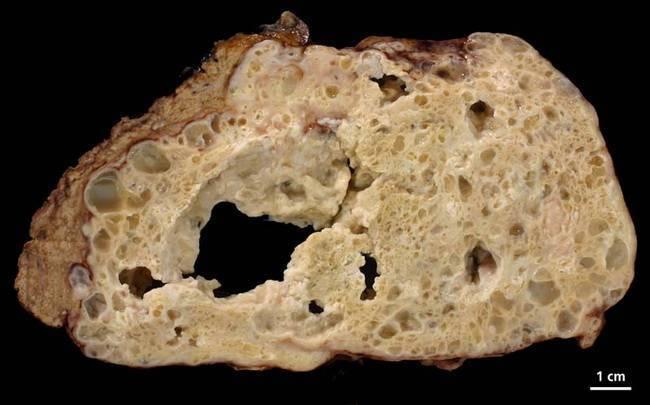 Симптомы и лечение альвеококкоза печени у мужчин и женщин