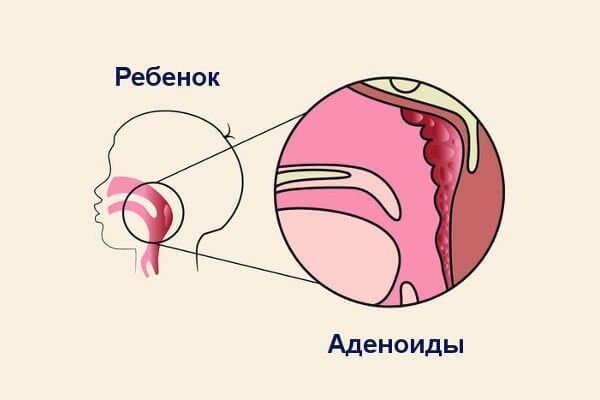 Как уменьшить аденоиды без операции