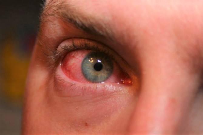 Капли глазные от кандидоза