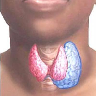 упражнения при гиперплазии щитовидной железы