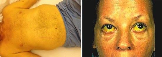 Смерть от цирроза печени: как быстро наступает