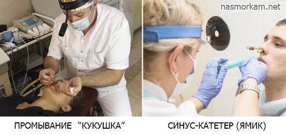 острый гемисинусит
