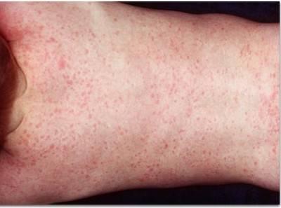 Герпес 6 типа у детей: симптомы вируса у ребенка, лечение (препараты), диагностика, профилактика, особенности (видео)