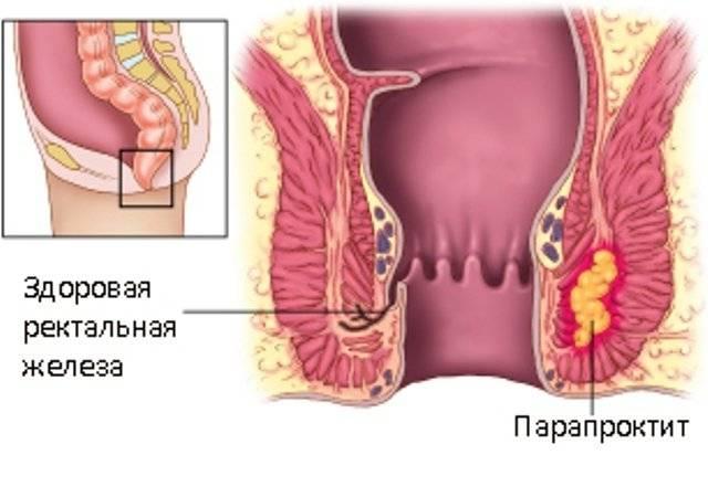 Геморрой у ребенка 3 года лечение