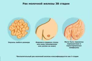 Сколько живут люди с раком груди 4 стадии