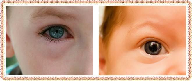 отек на глазу у ребенка
