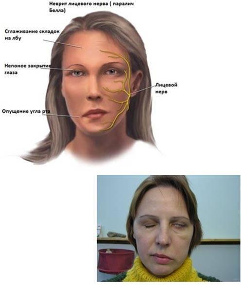 Главное, не перепутать: основные симптомы многогранной невралгии тройничного нерва