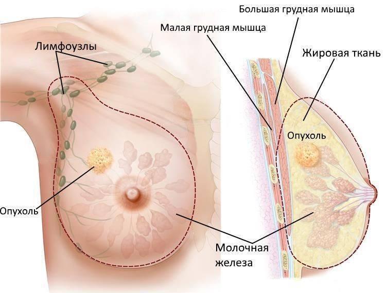 факторы риска возникновения рака молочной железы