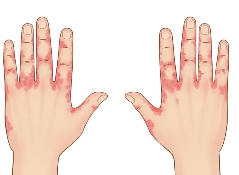 Как выглядит дерматит на ладонях фото