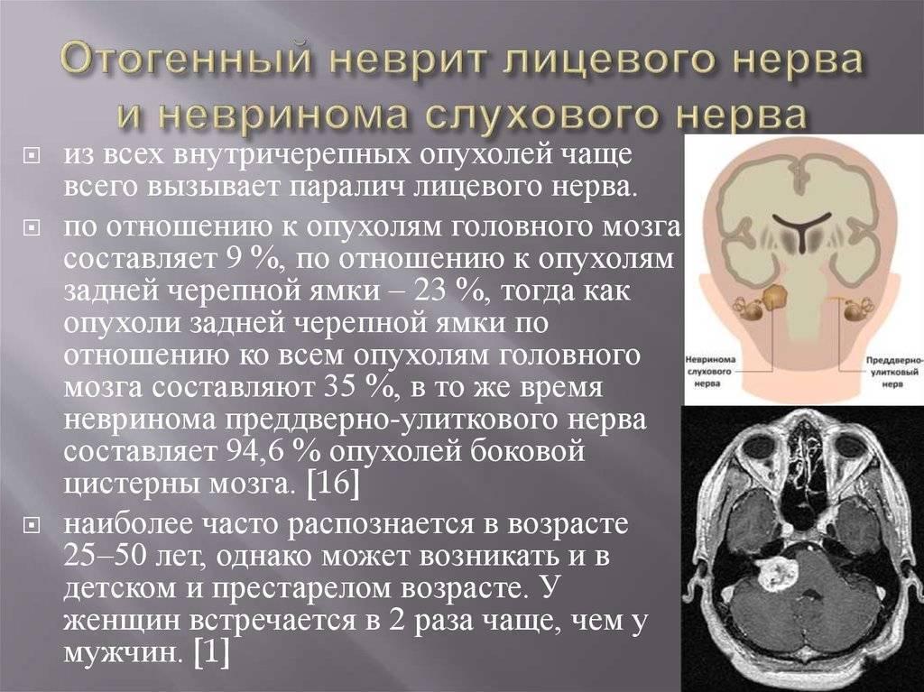 Неврит слухового нерва: симптомы, лечение народными средствами