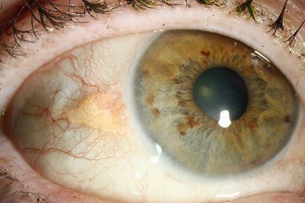 шишка на белке глаза