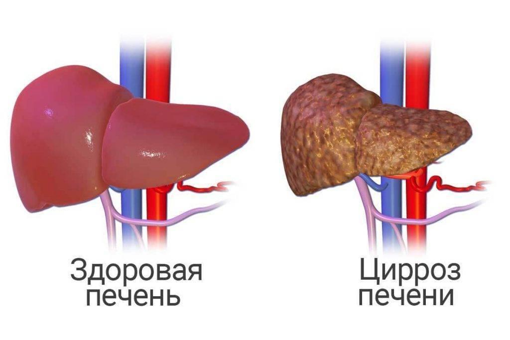 цирроз печени в стадии декомпенсации прогноз