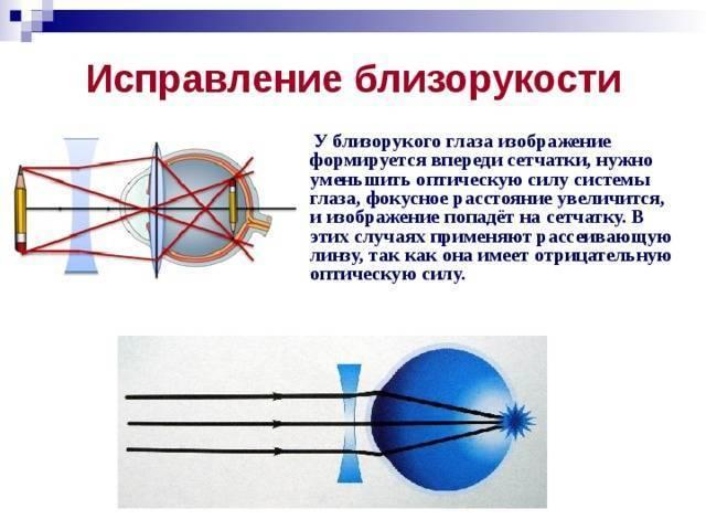 коррекция зрения при близорукости