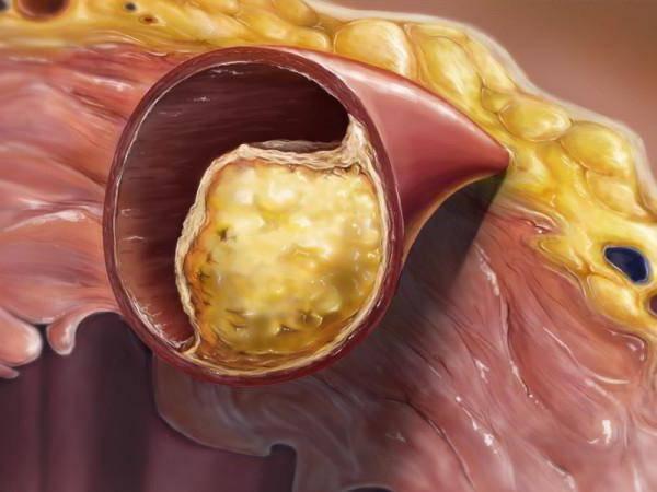холестерин в артериях