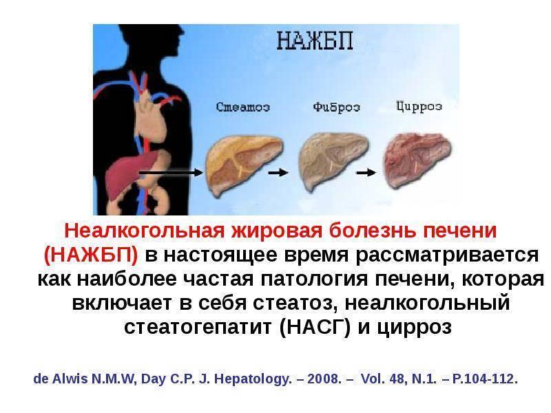 Стеатоз печени - лечение, симптомы, причины