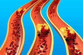 Что такое генерализованный атеросклероз и как его предупредить