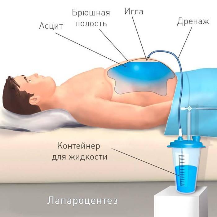 как вылечить асцит при циррозе печени