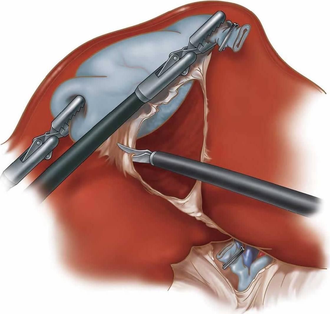Удаление желчного пузыря лапароскопия сколько длится операция