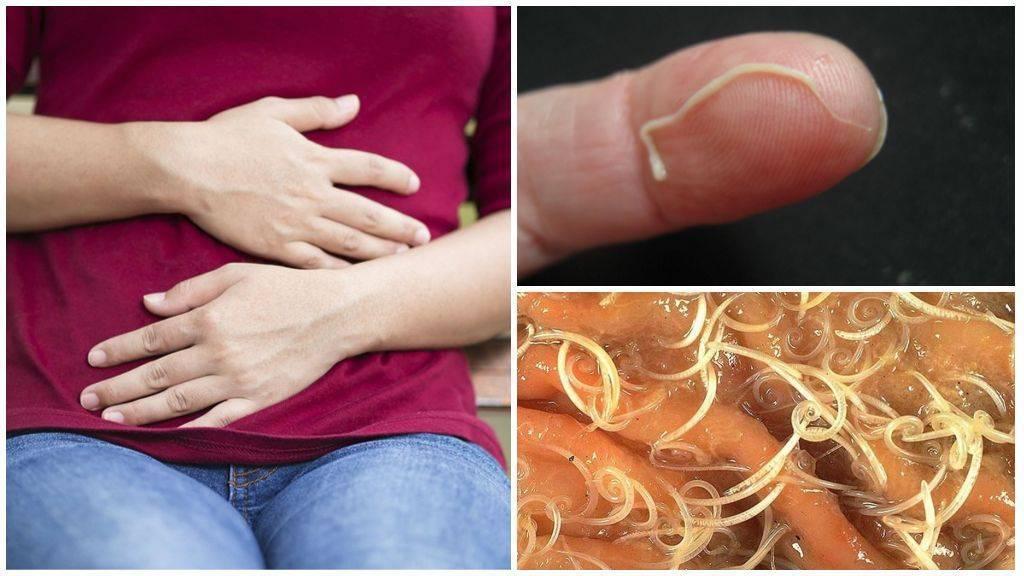Острицы у детей: симптомы, признаки и лечение, как вывести в домашних условиях, лекарства и таблетки, препараты