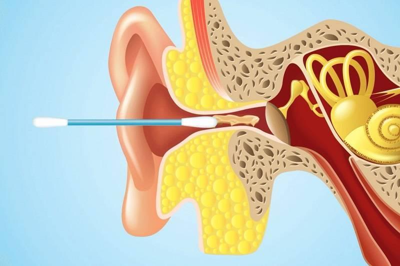 удаление серы из ушей