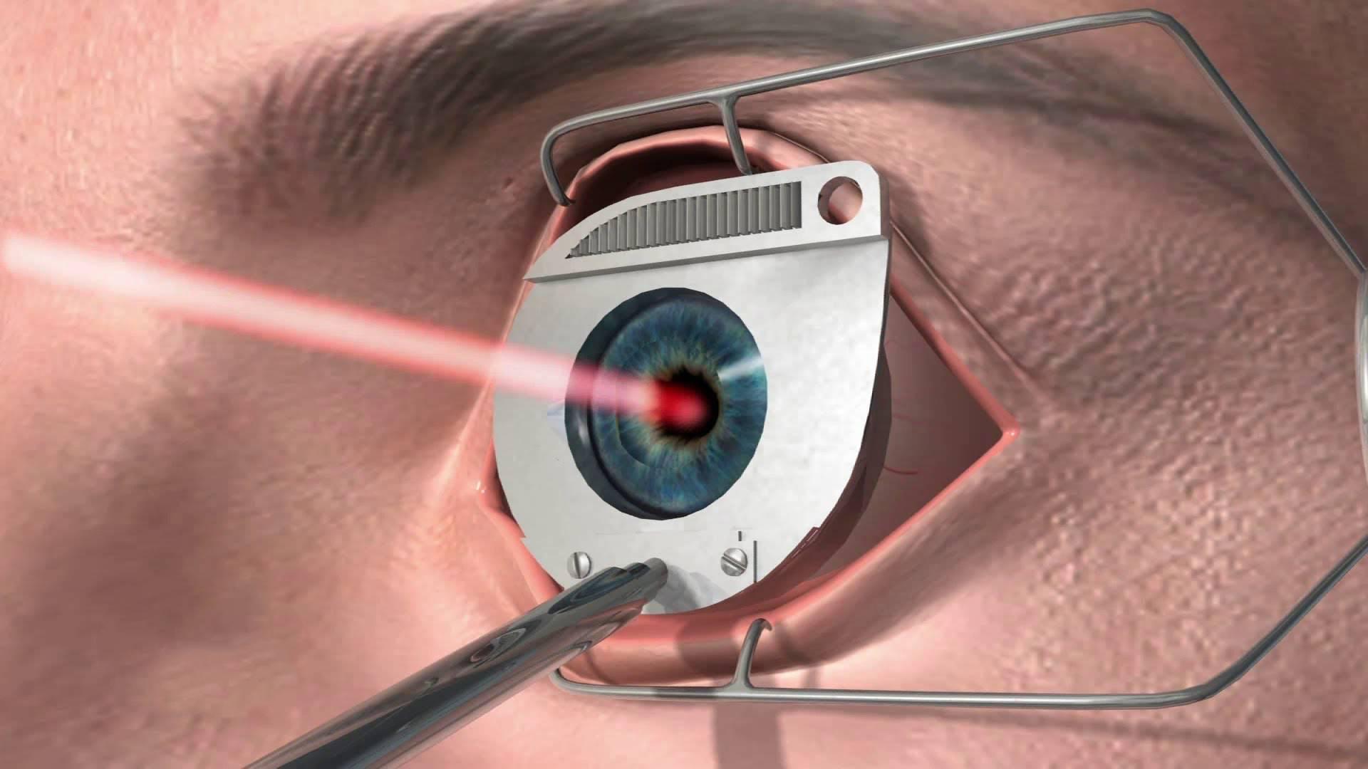 Операция при астигматизме на глаза: виды, стоимость