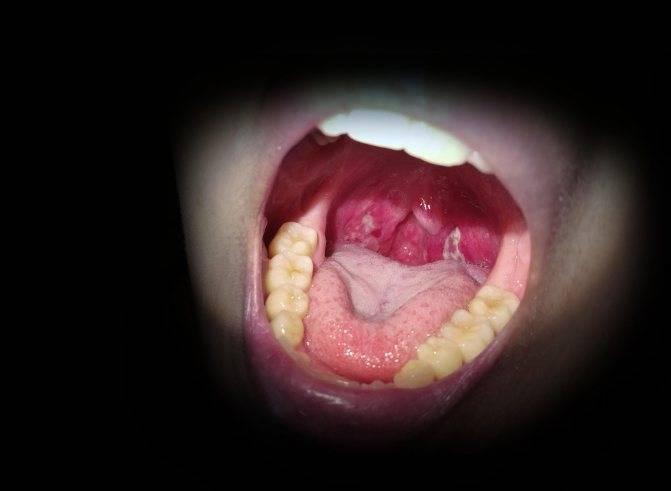 Причины появления ощущения комка в горле - что это может быть, диагностика и лечение
