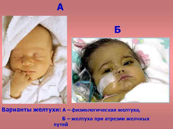 Ядерная желтуха новорожденных: симптомы и признаки (5 фото)