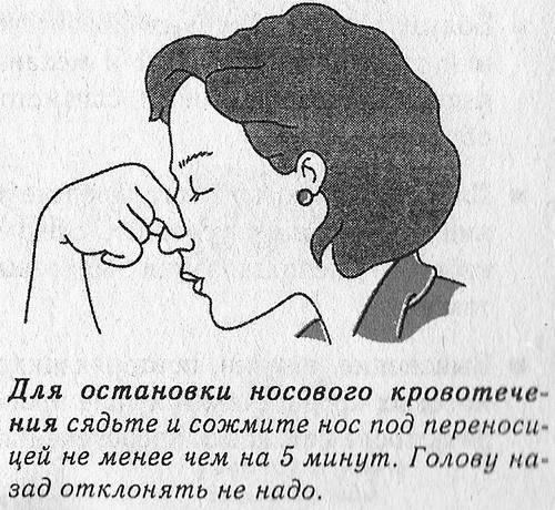 остановить носовое кровотечение дома