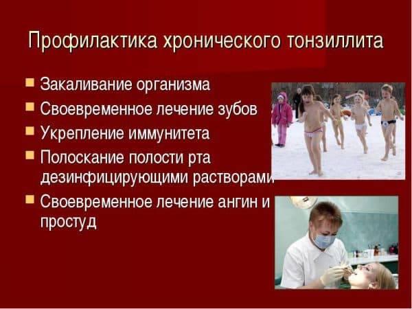профилактика тонзиллита у взрослых