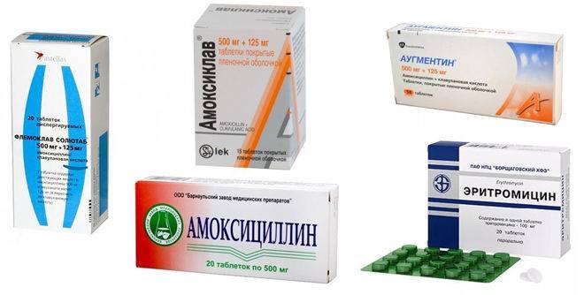антибиотики при насморке