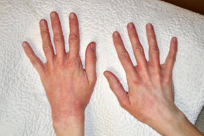 Дерматит на руках: виды, причины, симптомы и лечение