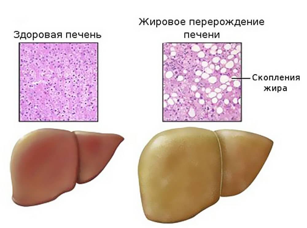 стеатоз печени симптомы и лечение