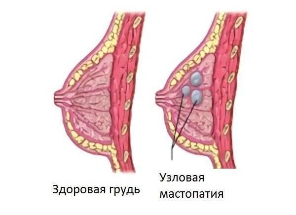 Мастопатия молочной железы: что это такое, симптомы, причины, как лечить