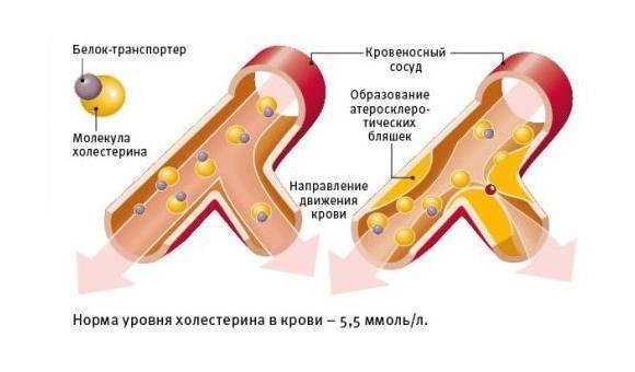 фолиевая кислота при холестерине