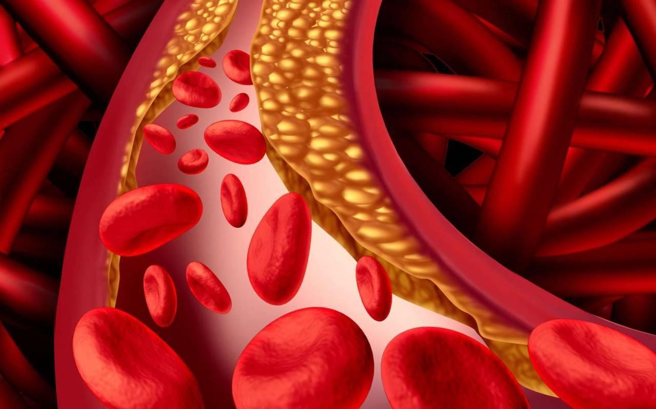 Лечение атеросклероза сосудов народными средствами