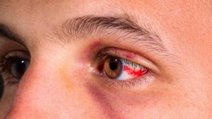 красные пятна перед глазами