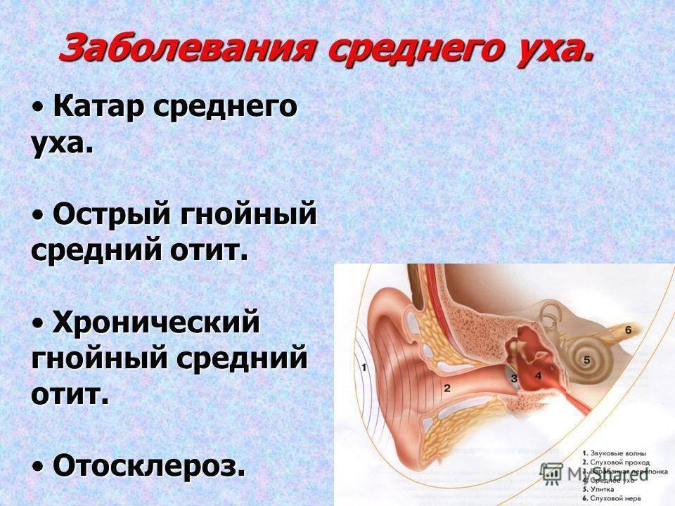 Статьи по заболеваниям, травмам внутреннего уха