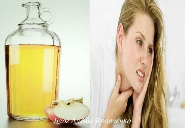 полоскать горло яблочным уксусом при ангине