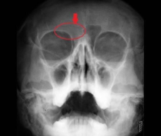 Мукоцеле лобной пазухи : причины заболевания, основные симптомы, лечение и профилактика