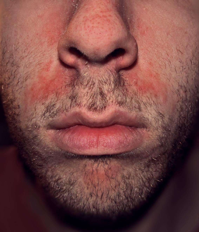 дерматиты на лице