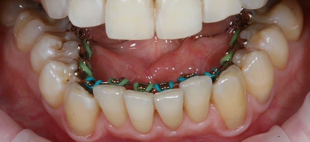 Брекеты и мрт головного мозга - можно ли? - запись пользователя * (id2620889) в сообществе все о красоте в категории уход за зубами - babyblog.ru