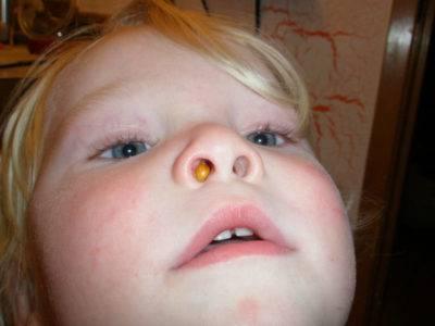 Заложенность носа у ребенка, новорожденный хрюкает носом, но соплей нет