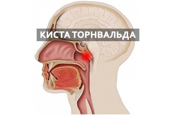 киста гортани симптомы